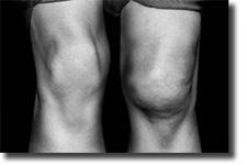 unhappy-traid-symptom-swollen-knee